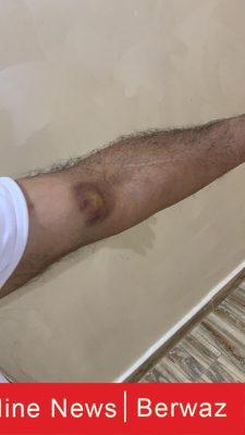 WhatsApp Image 2020 04 02 at 9.20.04 PM 1 225x400 - الحشرات تعود الى مدينة صباح الأحمد و مخاوف سكانها من عدم التعرف على نوعها