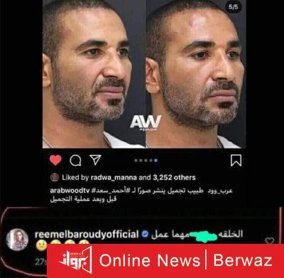 Ahmed Saad 2 400x391 - ريم البارودى تسخر من أحمد سعد بعد عملية التجميل