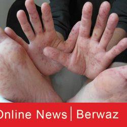 Hand foot and mouth disease 250x250 - عقارًا مرشحًا لمرض اليد والقدم والفم